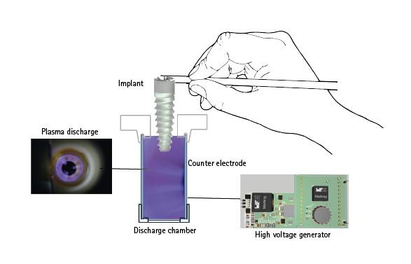 Activación con plasma de los implantes con el implaPrep
