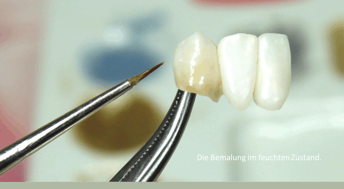 Bemalung von Zahnprothetik