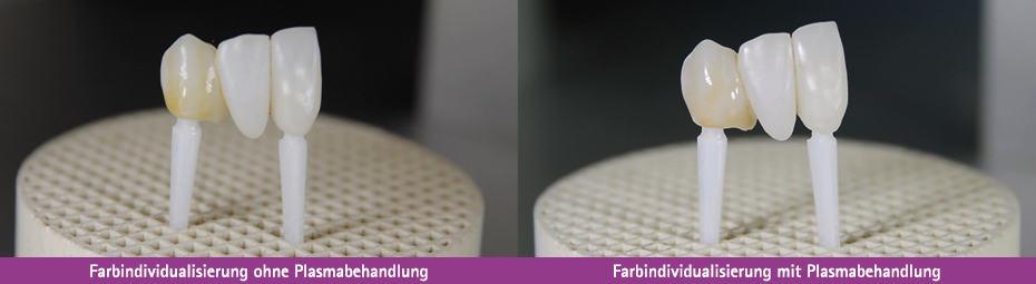 Farbindividualisierung von Implantaten ohne und mit Plasmabehandlung