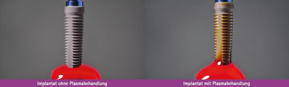 relyon plasama präsentiert auf der IDS den Unterschied, den eine Plasmabehandlung auf ein Implantat macht